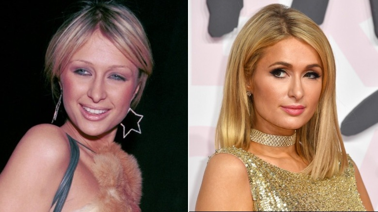 Paris Hilton before and after eyebrows