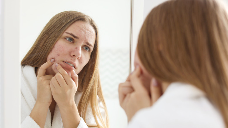 young woman with adult acne